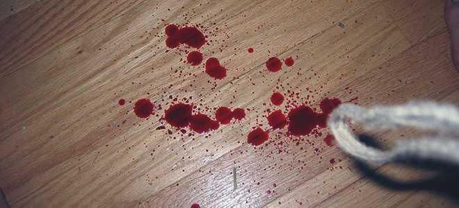 Как остановить кровотечение и оказать первую помощь