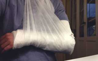 Первая медицинская помощь при переломах: что необходимо делать в первую очередь, виды и признаки переломов