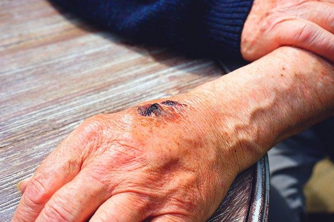 Рваная рана после укуса собаки