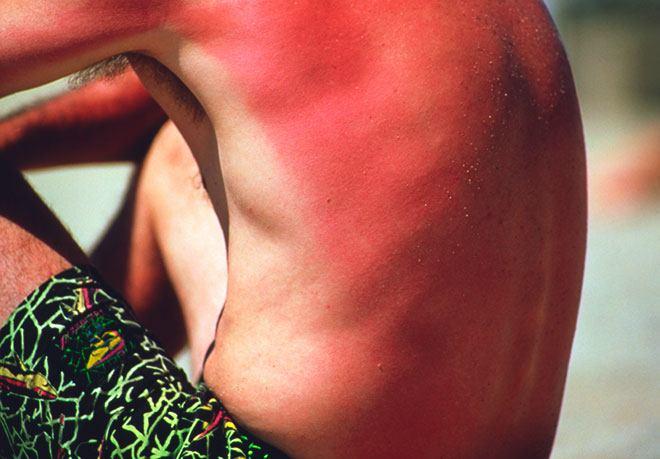 Сгорел на солнце